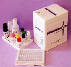 Human Chorionic Gonadotropin(HCG) ELISA Kit